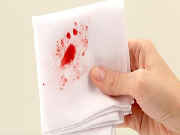 Triệu chứng phổ biến nhất của bệnh trĩ ngoại là đại tiện ra máu.